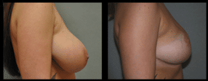 Breast Reduction | Signature Plastic Surgery Henderson NV