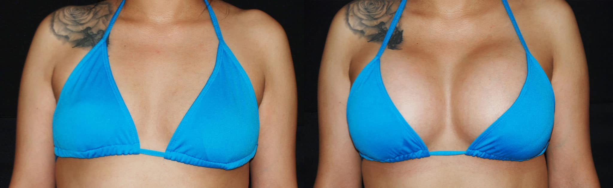 Breast Implants | Breast Augmentation Las Vegas NV
