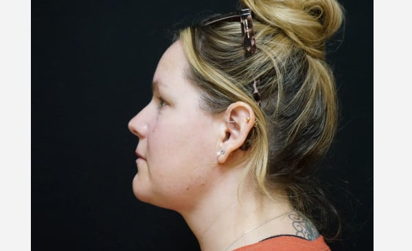 Liposuction of Neck, Chin and Jaw