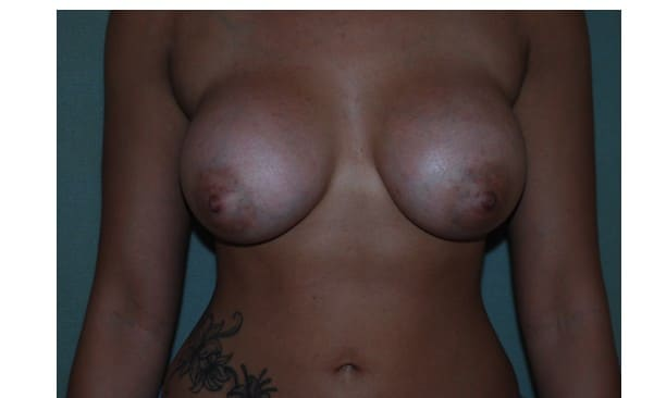 Patient 12 Breast Augmentation