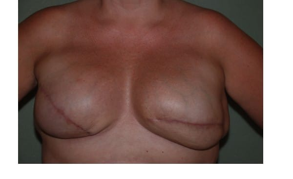 Patient 1 Breast Reconstruction