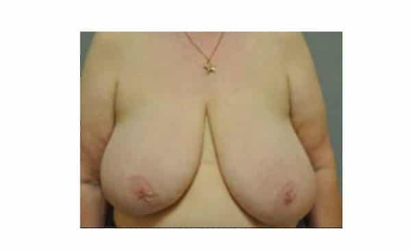 Patient 7 Breast Reduction