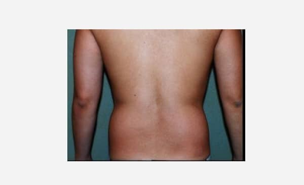 Patient 8 Liposuction