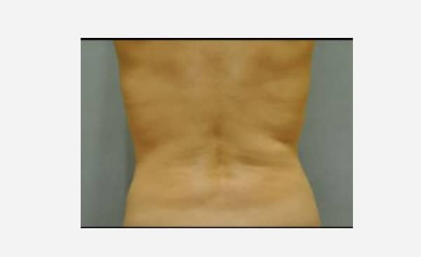 Patient 20 Liposuction