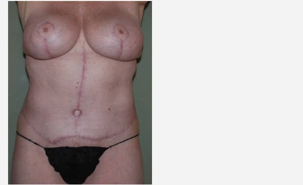 Abdominoplasty & Breast Augmentation